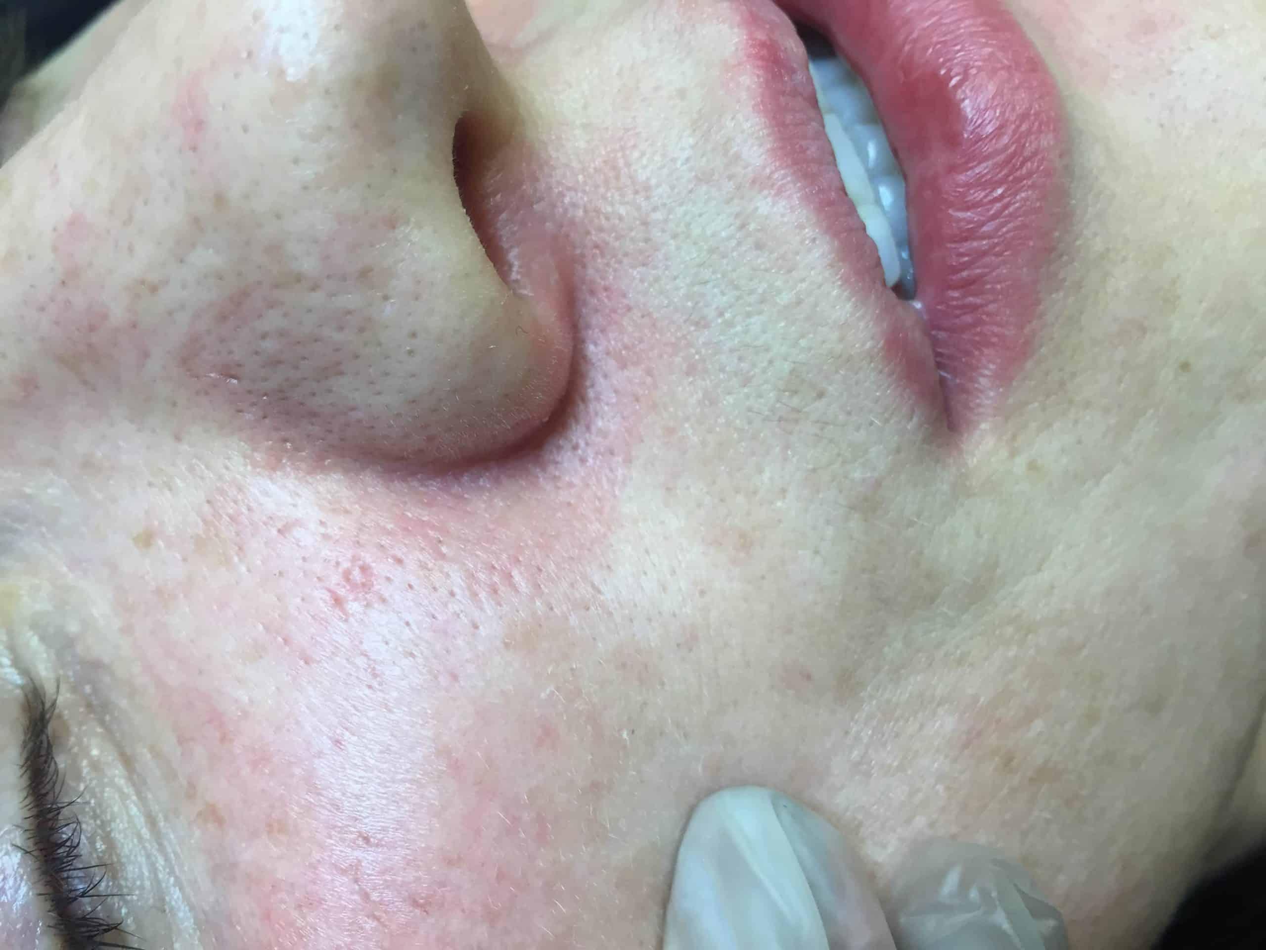Broken Capillaries around the nostril AFTER
