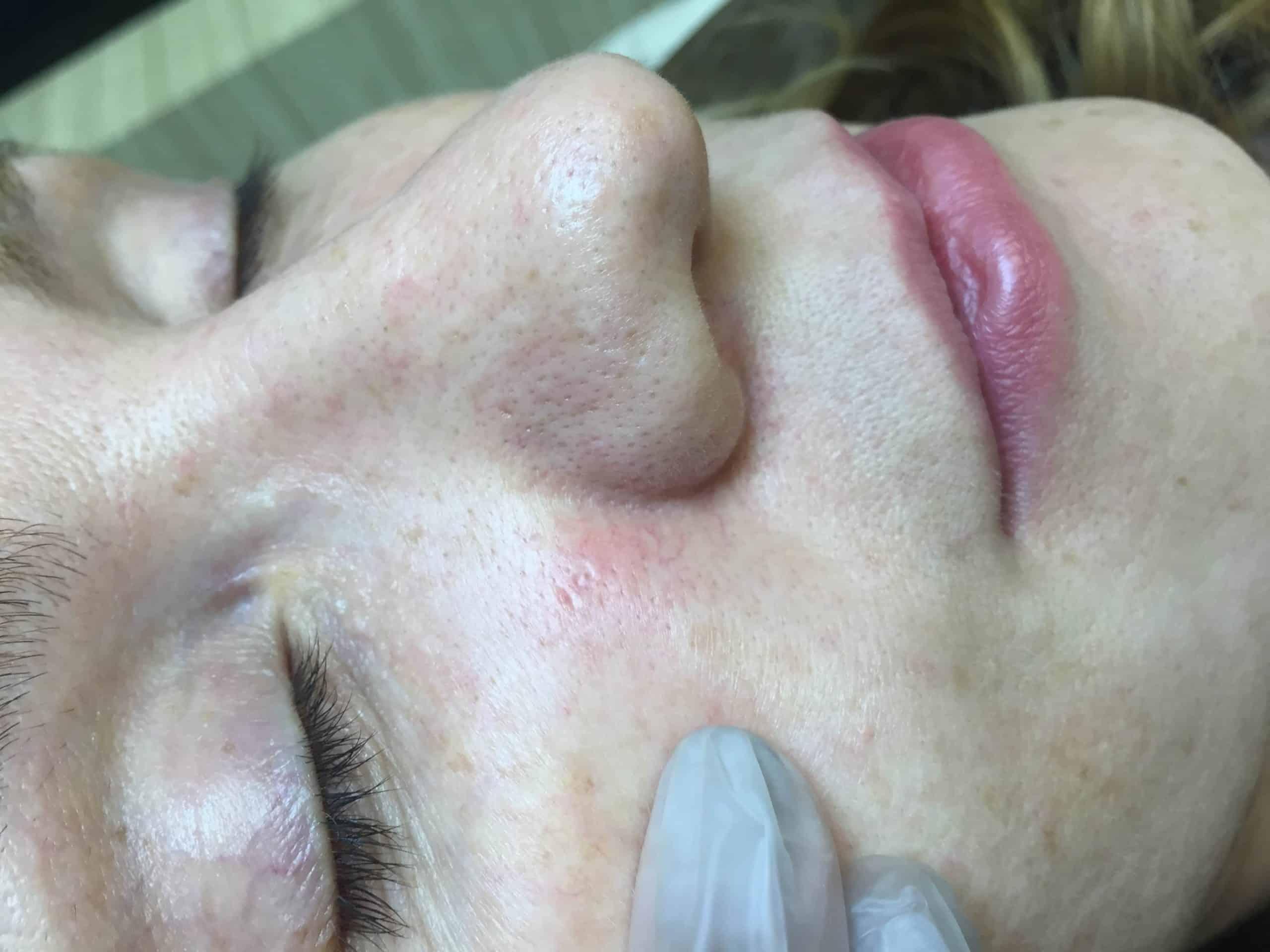 Broken Capillaries around the nostril BEFORE
